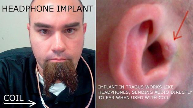 Štvala ho sluchátka, proto si implantoval reproduktor do ucha