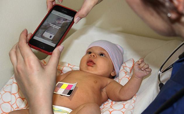 Experimentální aplikace umí poznat žloutenku u novorozence