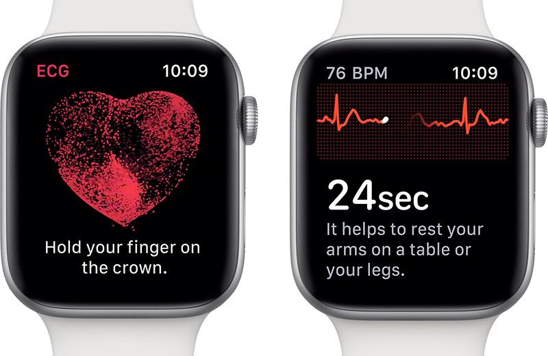 Apple Watch Series 4 – EKG zatím nebude pro Česko [aktualizováno]